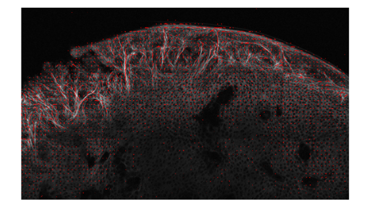 Fig.2: A multi-photon-microscope image of a knee articular cartilage. (c) Lilledahl 2011